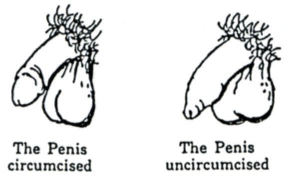 Medical photo of uncirsumsized penis