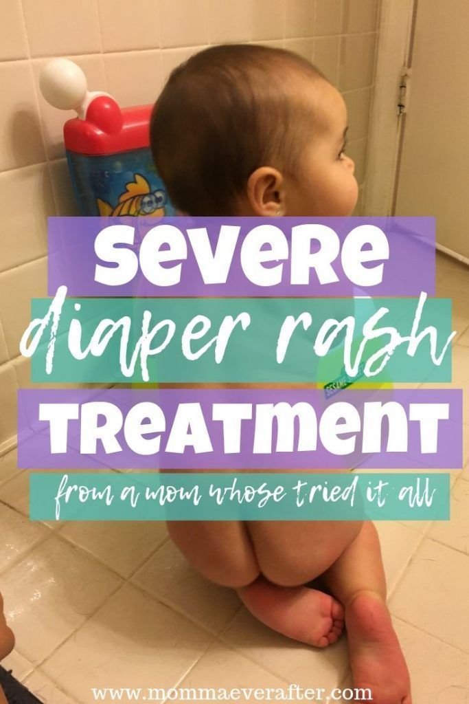 Severe Diaper Rash Treatment (from a mom whose tried it all!) Easy and quick remedy for stubborn diaper rash. #babyrashestreatment Severe Diaper Rash Treatment (from a mom whose tried it all!) Easy and quick remedy for stubborn diaper rash. #babyrashestreatment Severe Diaper Rash Treatment (from a mom whose tried it all!) Easy and quick remedy for stubborn diaper rash. #babyrashestreatment Severe Diaper Rash Treatment (from a mom whose tried it all!) Easy and quick remedy for stubborn diaper ras #babyrashestreatment