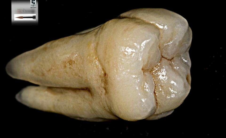 Pin de Rene Mauricio X en Anatomy | Pinterest | Anatomía dental ...