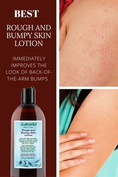 best products for bumpy skin