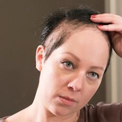 #Trichotillomania - I can't stop pulling my hair out   My ...