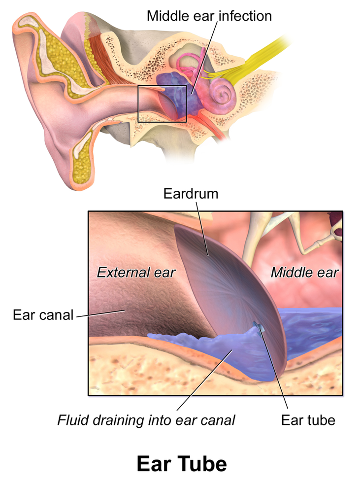 What Your Type Of Ear Drainage Can Tell Your Doctor Middle Ear Ear Drainage Fluid In Ears