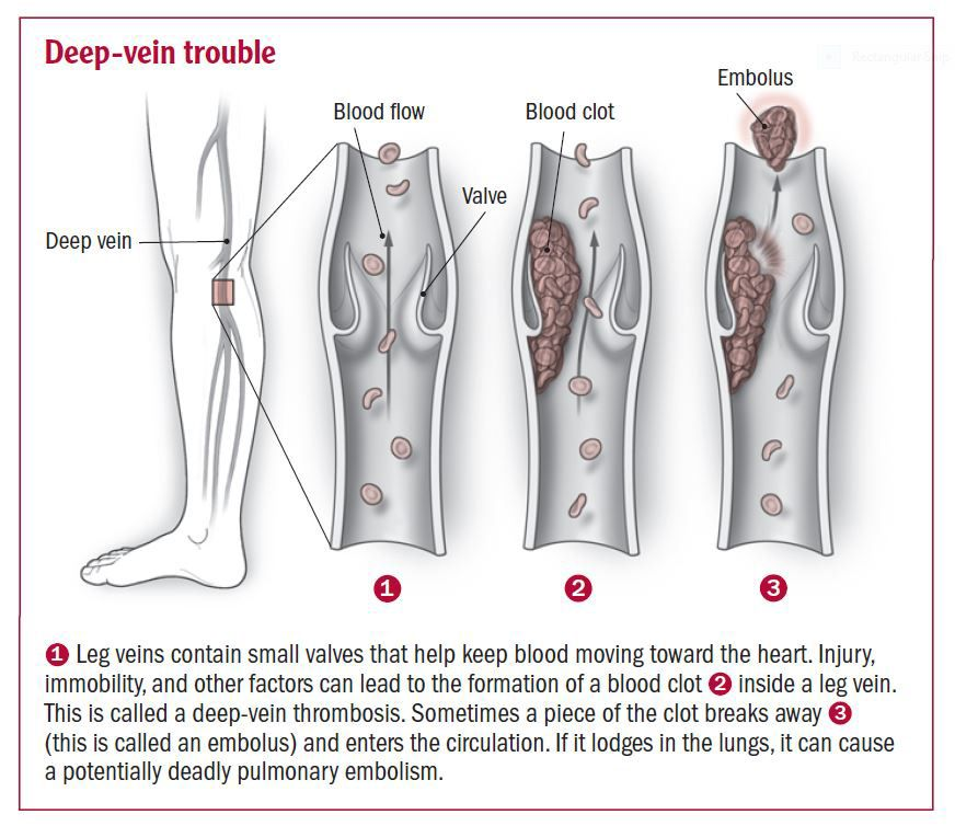 how to improve blood circulation in legs nhs
