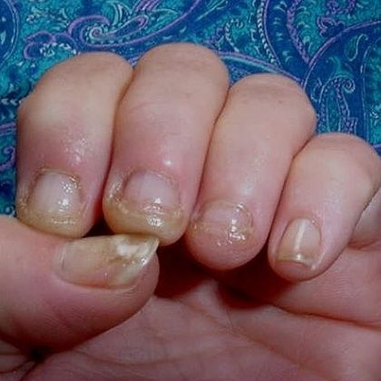 Грибковые заболевания кожи и ногтей