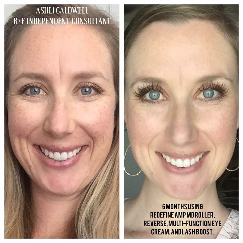 before after rodan fields redefine reverse and lash boost