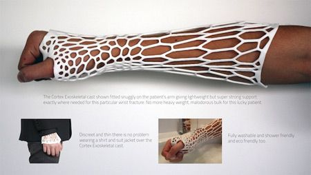 3DPrinted Cast, created by a Kiwi 3d printed objects