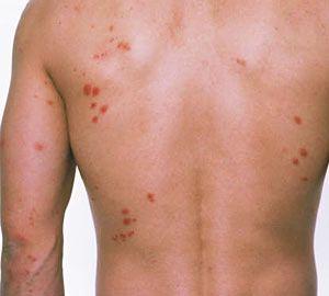 Earwig Bite Symptoms