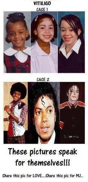 tell me again that Michael did not have vitiligo.