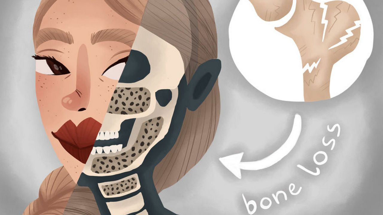30++ Does osteoporosis only affect women viral