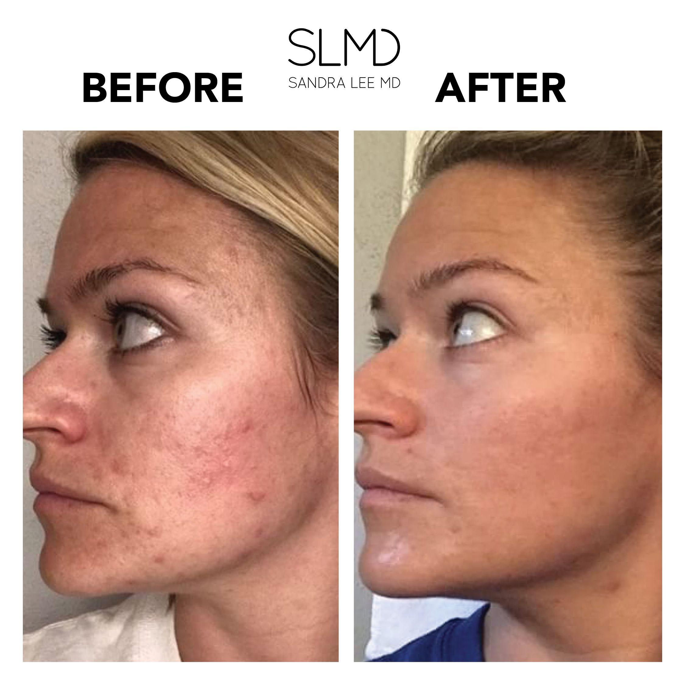 Shop Slmd Skincare Solutions Oily Skin Skin Care Acne