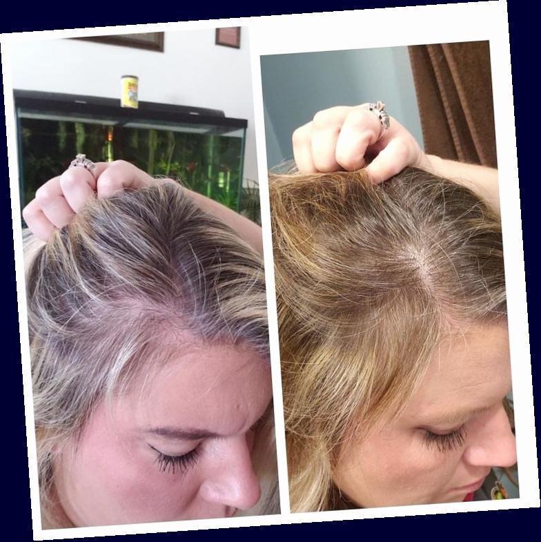 Pin By Emy Stgo Gvrz On Set De Iconos In 2020 Postpartum Hair Loss Hair Loss Remedies Women Hairstyles For Thin Hair