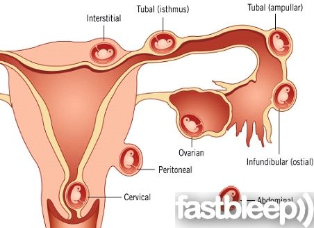 Ectopic pregnancy can be treated medically ill a small ...
