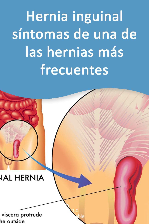 Hernia Inguinal Síntomas De Una De Las Hernias Más Frecuentes Hernia Dolor Testicular Dolor De Pies