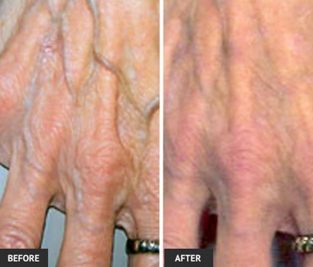 hand vein treatment