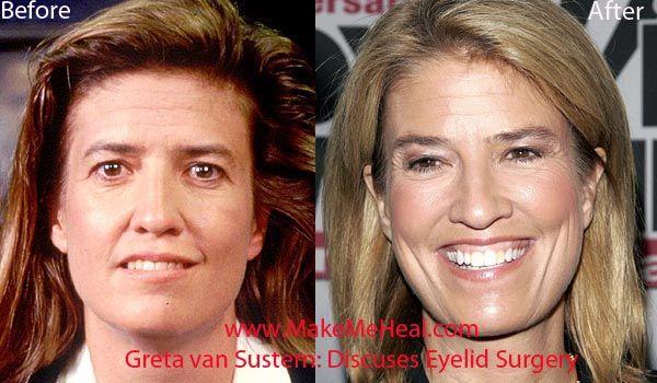Greta Van Susteren Plastic Surgery Before After Plastic Surgery Plastic Surgery Pictures Celebrity Plastic Surgery