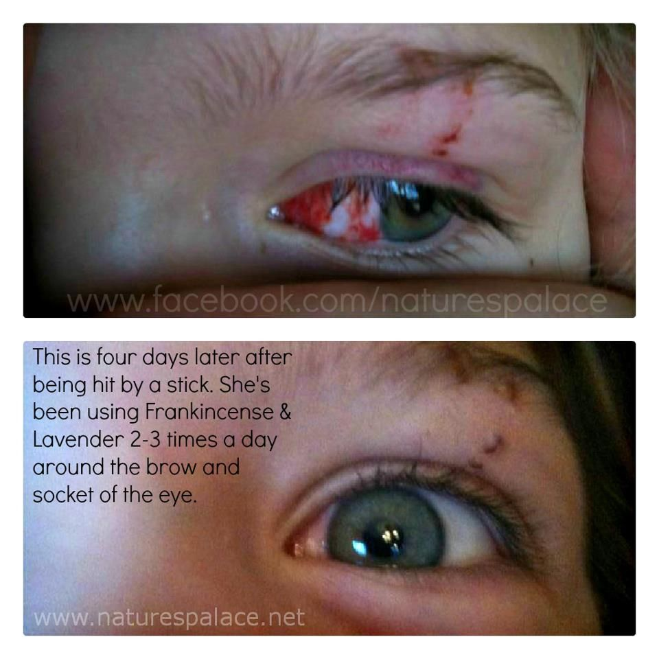 Child Eye Injury Testimony Cptg Frankincense Lavender Essential Oils Therapeutic Essential Oils Essential Oils Frankincense Essential Oil