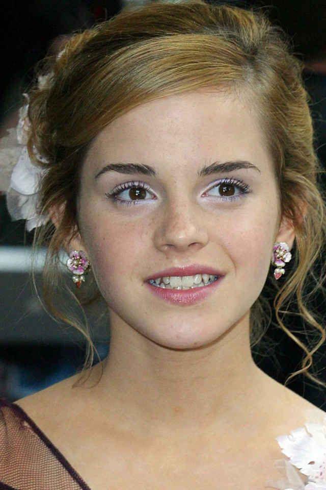 Emma Watson Before And After Emma Watson Beautiful Emma Watson Emma Watson Pics