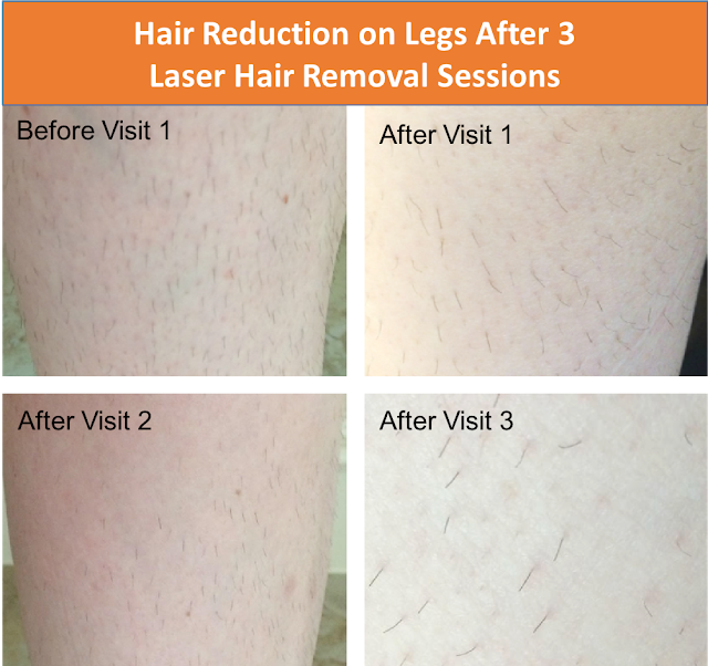 My Experience With Laser Hair Removal After 3 Sessions At Spa810