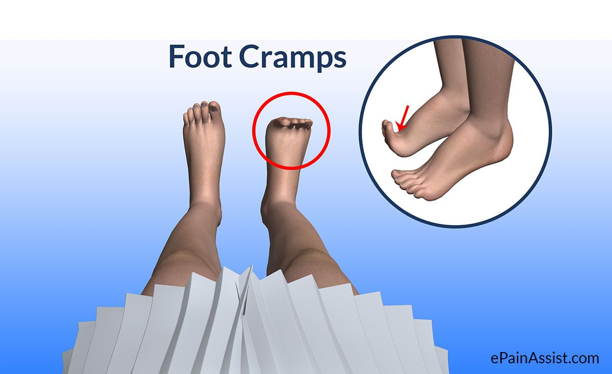 How To Get Rid Of Charlie Horse In Foot