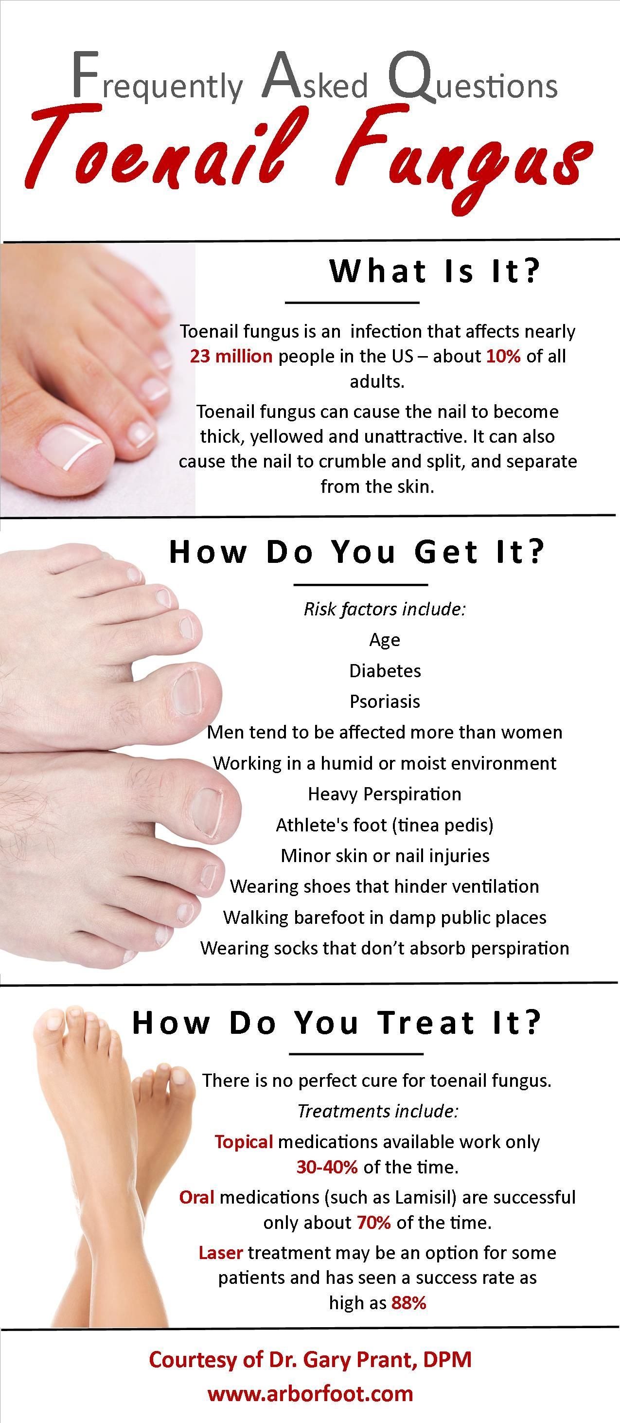 What is toenail fungus? How do you get it? How do you treat it? Dr ...