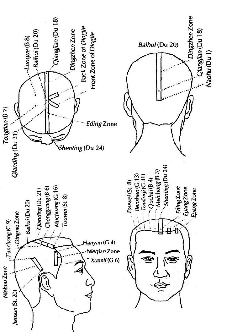 Pin on Acupuncture Meridians