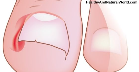 Here Is How To Get Rid Of Ingrown Toenail At Home Without