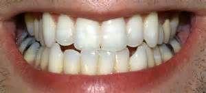 Tag Como Clarear Os Dentes Naturalmente Yahoo