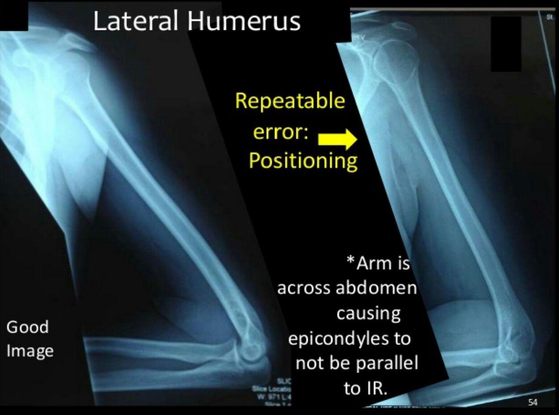 Lateral humerus | Rad tech | Pinterest | Rad tech and Radiology