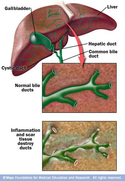 Bile Duct Damage Mayo Clinic Bile Duct Bile Duct Cancer Liver Health