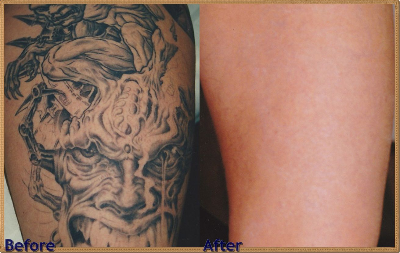 how much for tattoo removal, best laser tattoo, laser