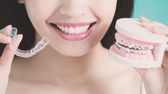 5 Gründe, sich für Zahnkorrekturen und Zahnspangen zu entscheiden, um ein gutes Lächeln zu erhalten   – Braces