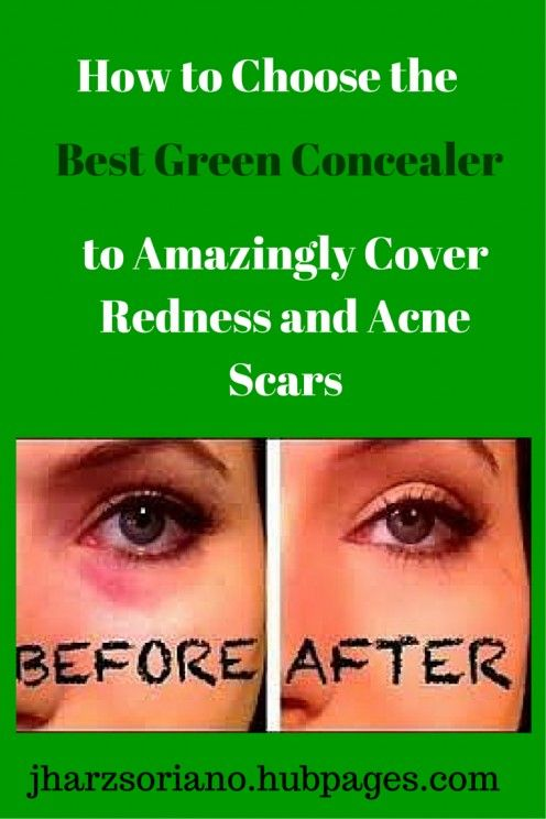 How to Choose the Best Green Concealer to Amazingly Cover Redness ...