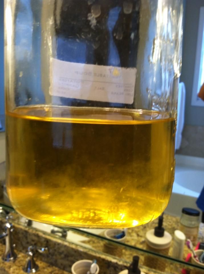 Urine Sediment Urine sediment #4 | 2015-Body Fluids w/related ...