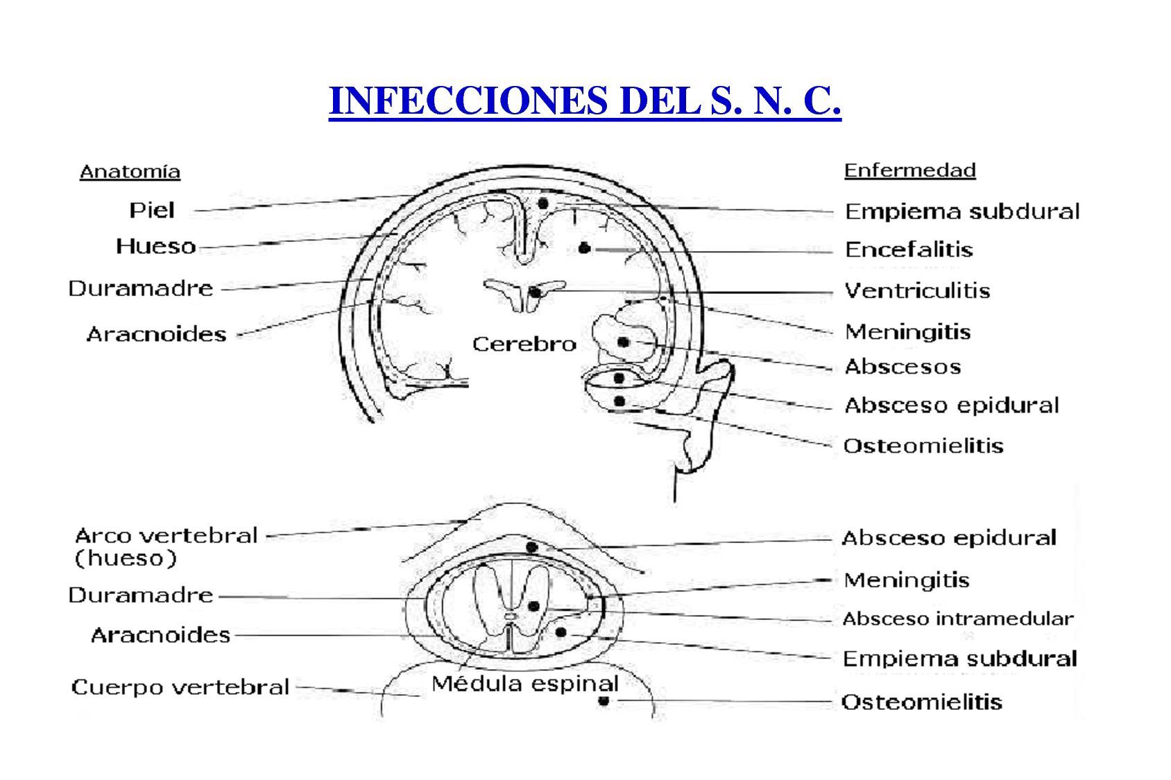 diabetes mellitus tipo 2 afecciones secundarias de la médula espinal