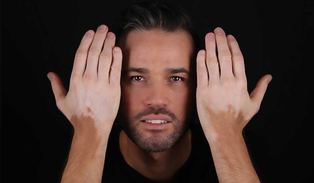 أعراض البهاق In 2020 Vitiligo Treatment Vitiligo Vitiligo Cure