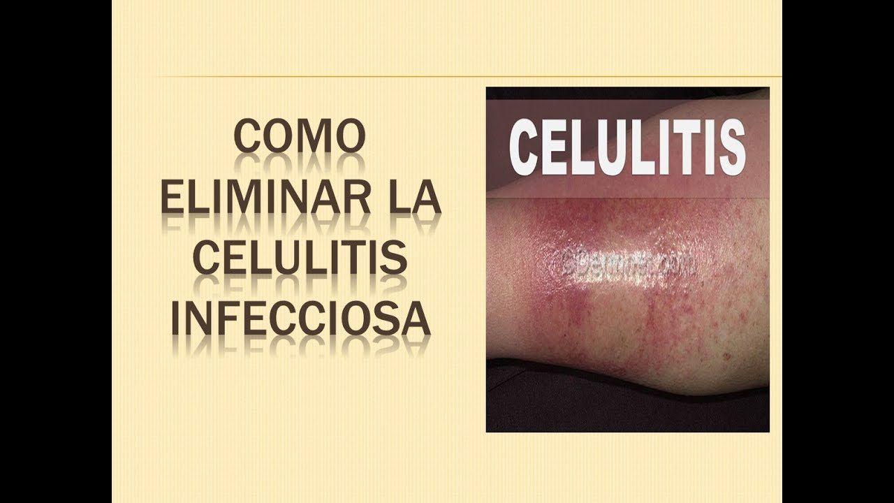 celulitis infecciosa tratamiento fisioterapeutico