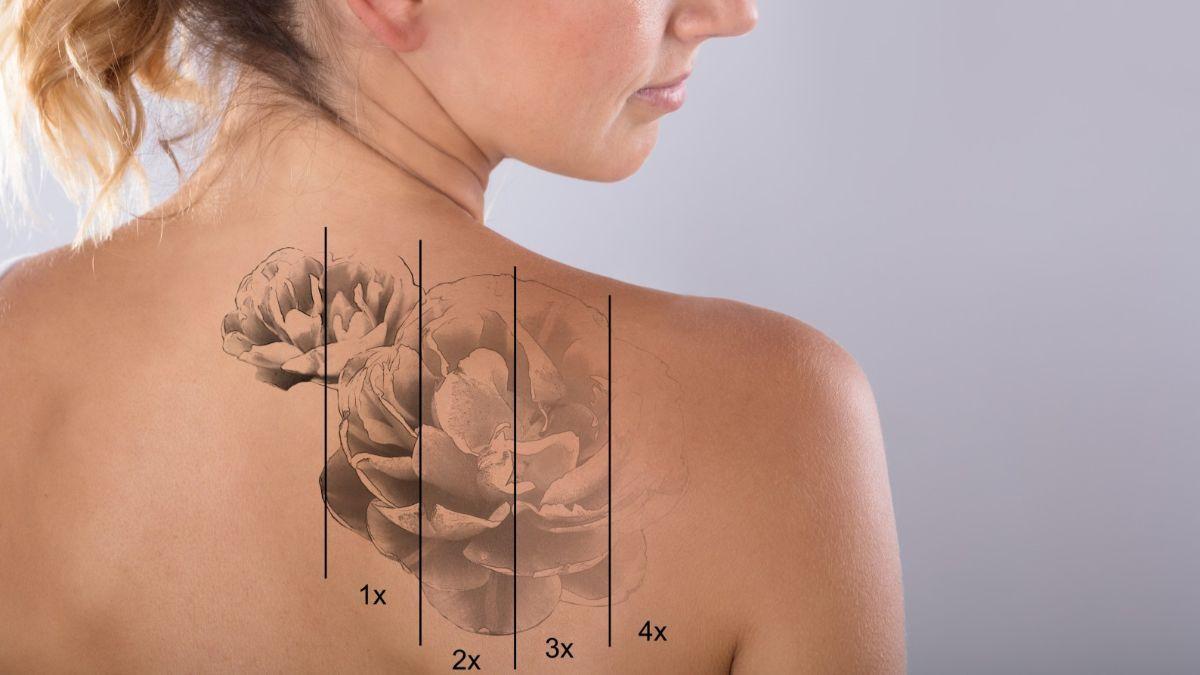 Enlever Un Tatouage Les Meilleures Methodes Et De Nombreux