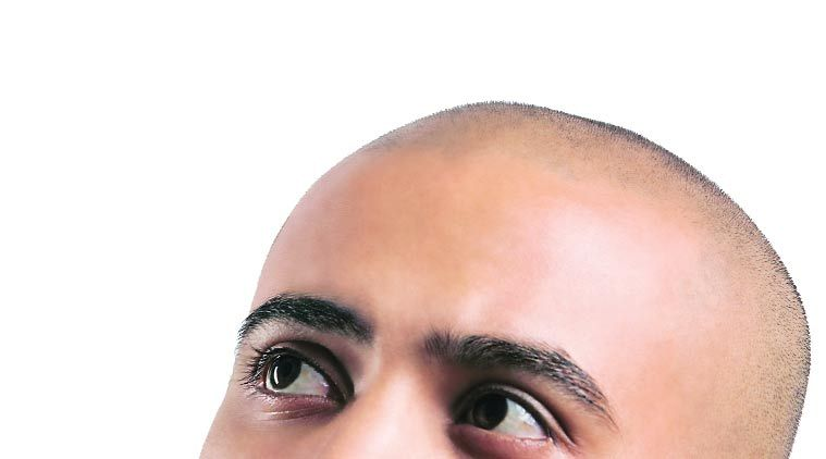 hair loss, men hair loss, men hair problem, losing hair, receding hair line, hair fall, bad hair problem,  health news, indian express