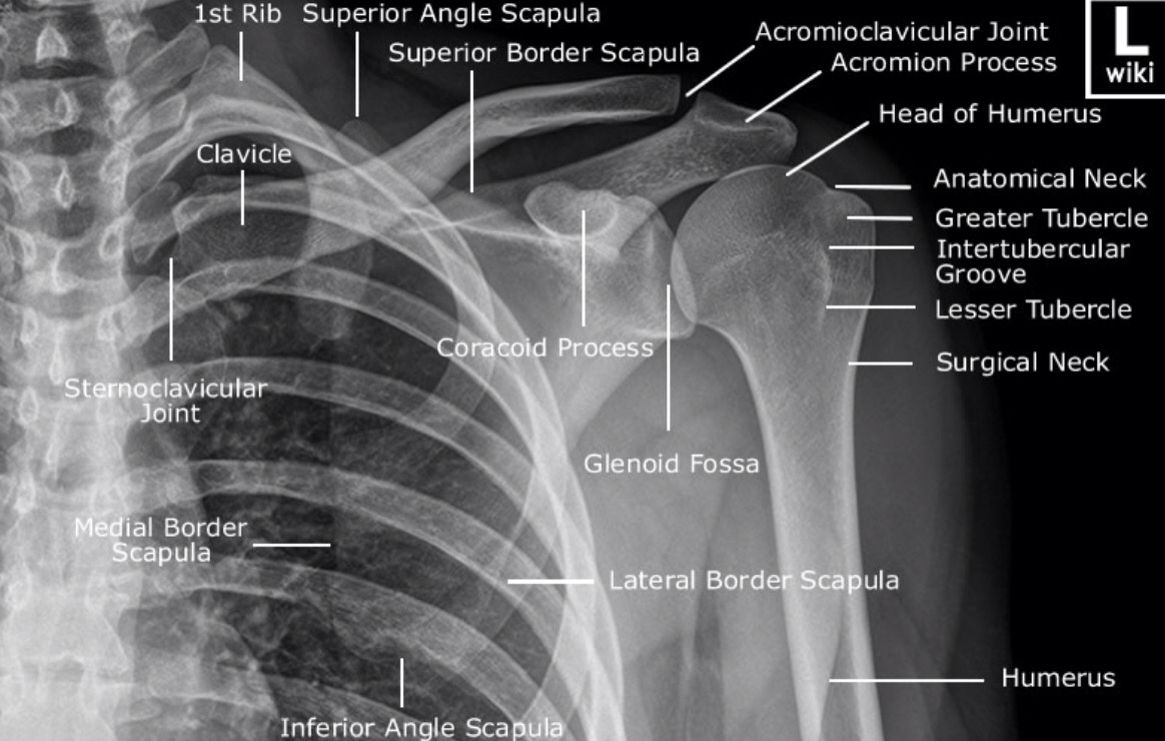 AP of the shoulder | X-ray anatomy | Pinterest | Shoulder, Radiology ...