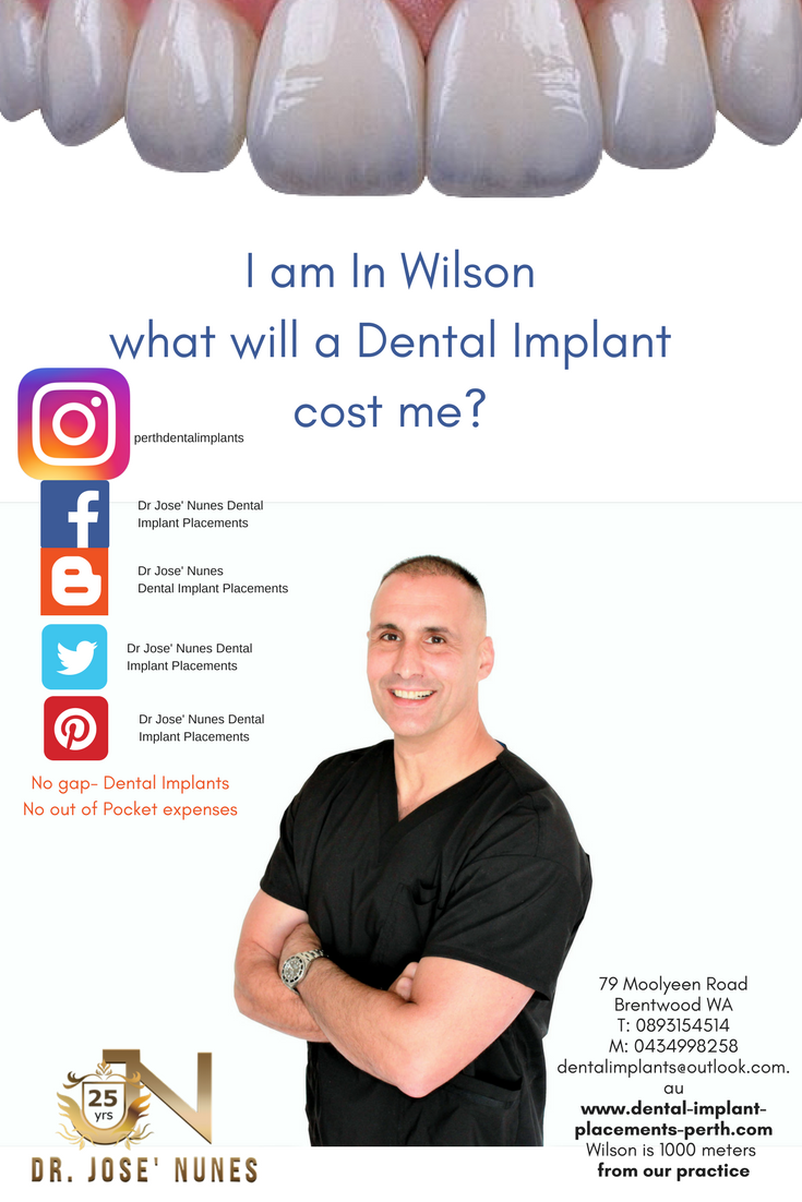 May 2018 in Wilson the cost of a Dental Implant placement