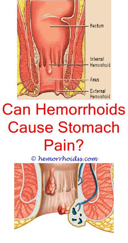 Hemorrhoids block anus