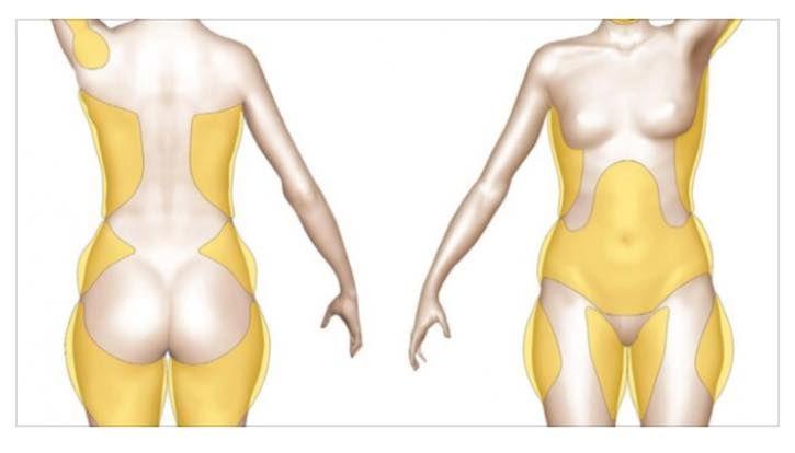 perdere l aiuto grasso corporeo