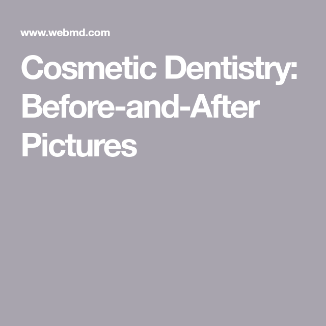 Slideshow Cosmetic Dentistry  BeforeAndAfter Pictures  Cosmetics