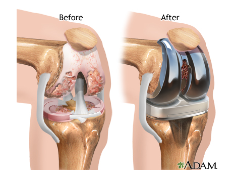 Knee #replacement #surgery - comparative diagram of before and after ...
