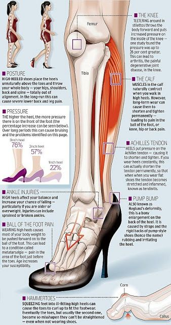 372381d73aa What does wearing  high  heels do to your  feet  Check out this infographic  to find out!
