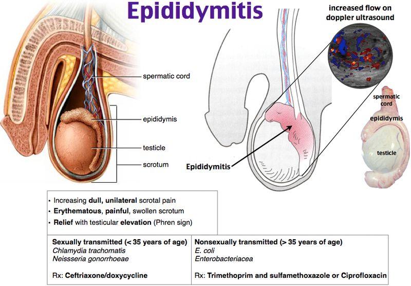 Epididymitis Rosh Review Medical Mnemonics Pediatric Surgery