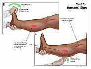 Homan's sign test | Medivisuals Test for Homans' Sign Medical ...