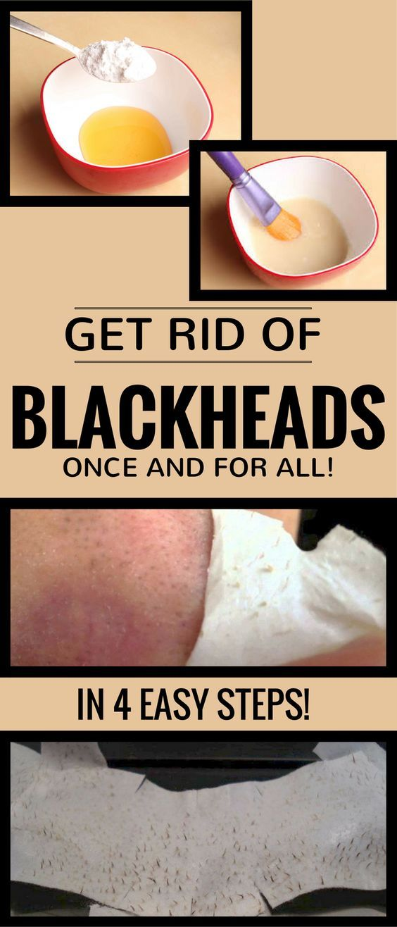 Get Rid Of Blackheads Once And For All In 4 Easy Steps - 101Beauty