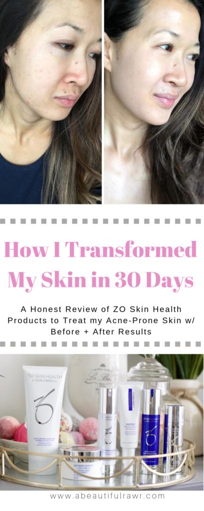 How Zo Skin Health Changed My Skin In 28 Days A Beautiful Rawr Skin Health Acne Prone Skin Anti Aging Skin Care