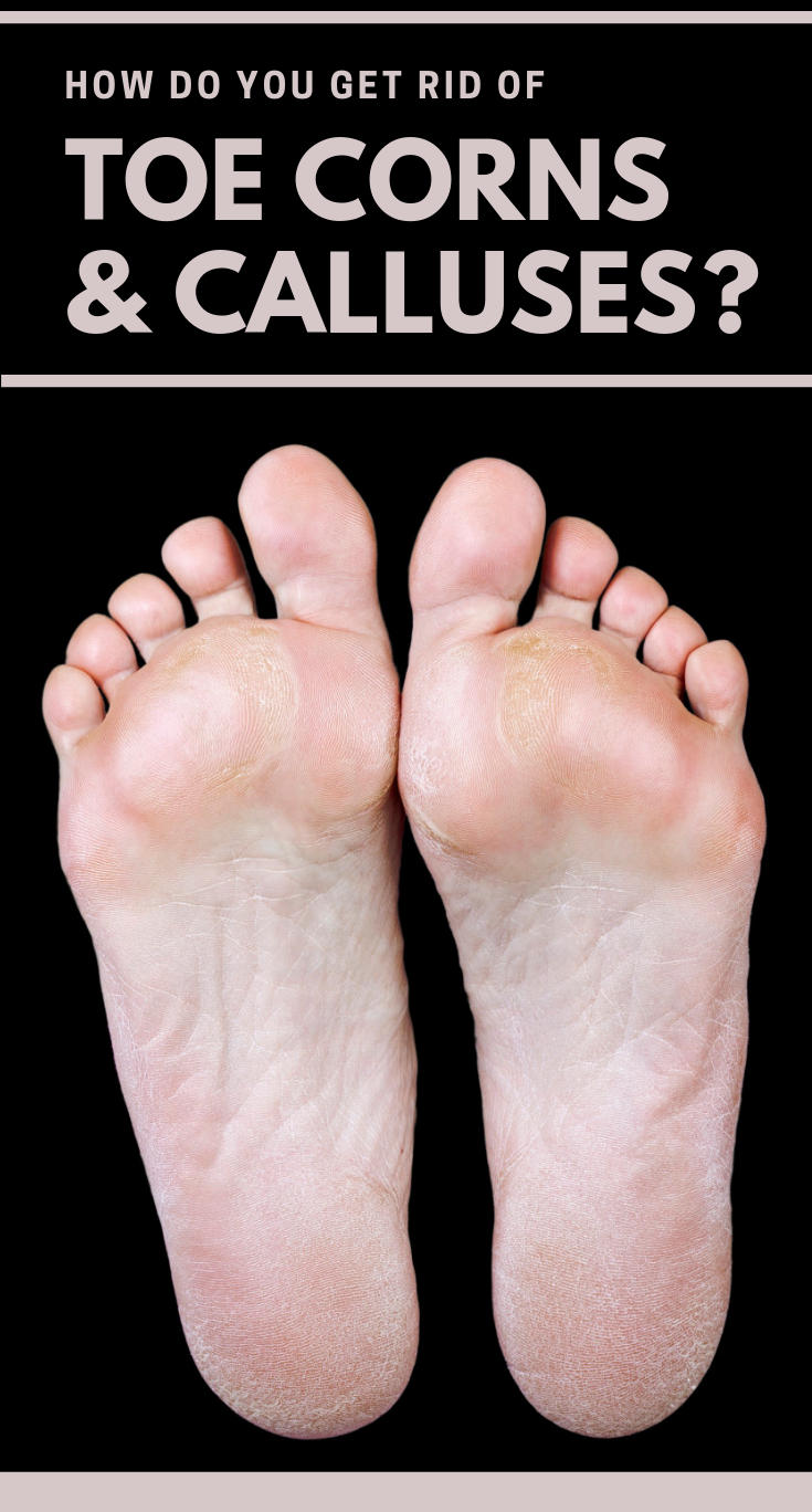 42d1f29558468fc927c17f3ef1195065 - How To Get Rid Of Callus On Toes Permanently